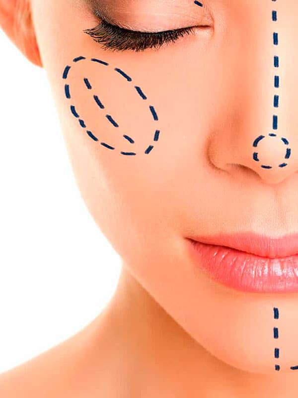 Rinoplastia para corregir desviacion de tabique nasal
